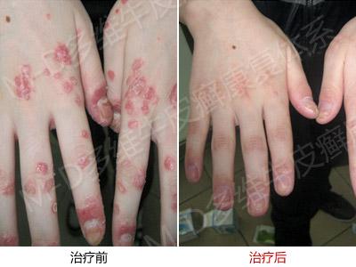 手部患有牛皮癣有什么症状特点