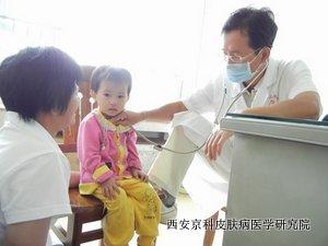 儿童吃零食小心惹上牛皮癣