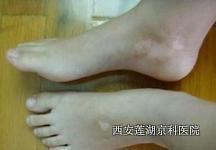 睡前醋泡双脚治疗牛皮癣有用吗