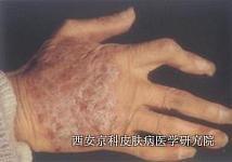 手部牛皮癣的初期表现有哪些呢