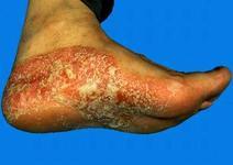 双脚牛皮癣的危害有哪些
