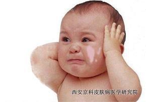 儿童脸部长牛皮癣怎么治疗呢