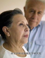 护理老年牛皮癣难不难