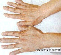 青少年手部牛皮癣的症状