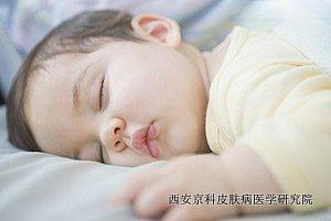 如何做好儿童牛皮癣护理