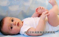 儿童牛皮癣好护理吗