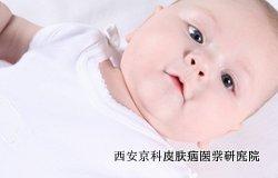 儿童牛皮癣早期症状