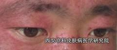 男性脸部牛皮癣的症状