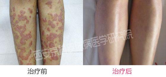 腿部牛皮癣致病因素