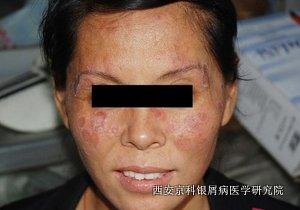 怎么做好牛皮癣的面部护理