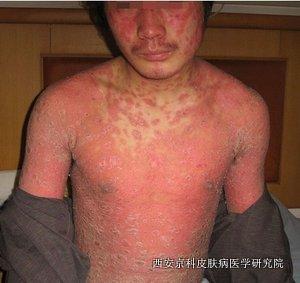 关节病型牛皮癣预防