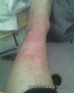 腿部牛皮癣病因是什么