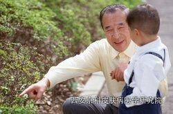中老年牛皮癣平时怎样护理