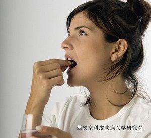 牛皮癣能吃巧克力吗